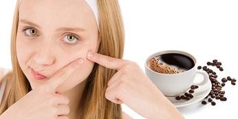 вылечить прыщи можно убрав из питания кофе и молоко